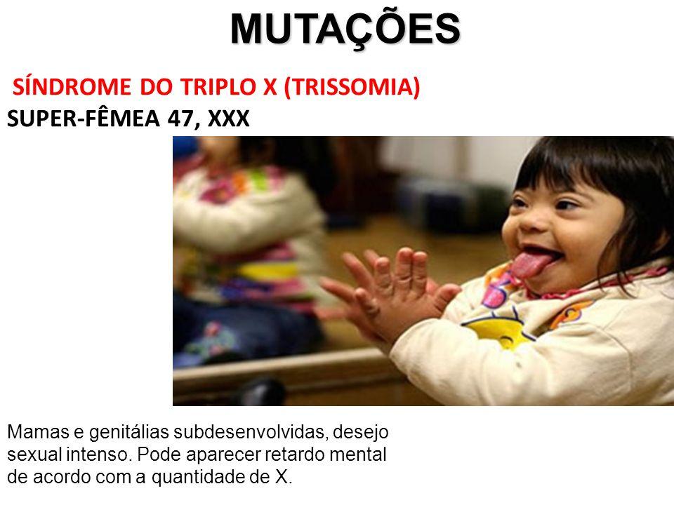 MUTAÇÕES MUTAÇÕES SÍNDROME DO TRIPLO X (TRISSOMIA) SUPER-FÊMEA 47, XXX Mamas e genitálias subdesenvolvidas, desejo sexual intenso. Pode aparecer retar