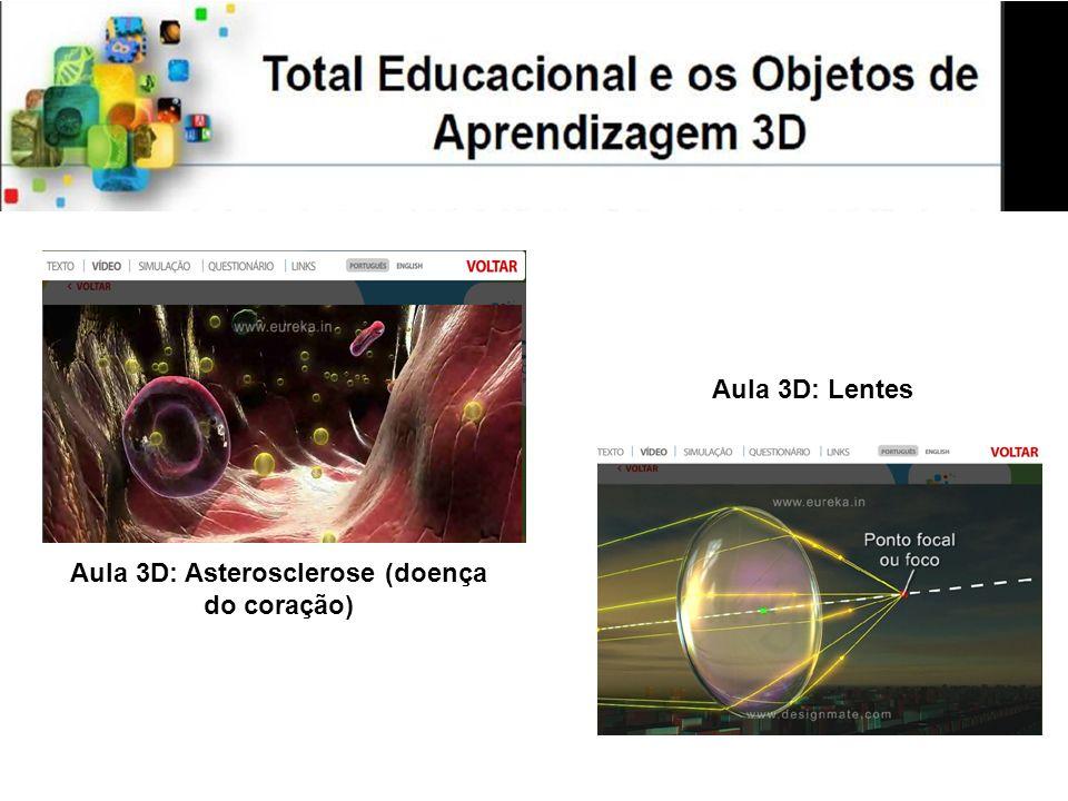 Aula 3D: Asterosclerose (doença do coração) Aula 3D: Lentes