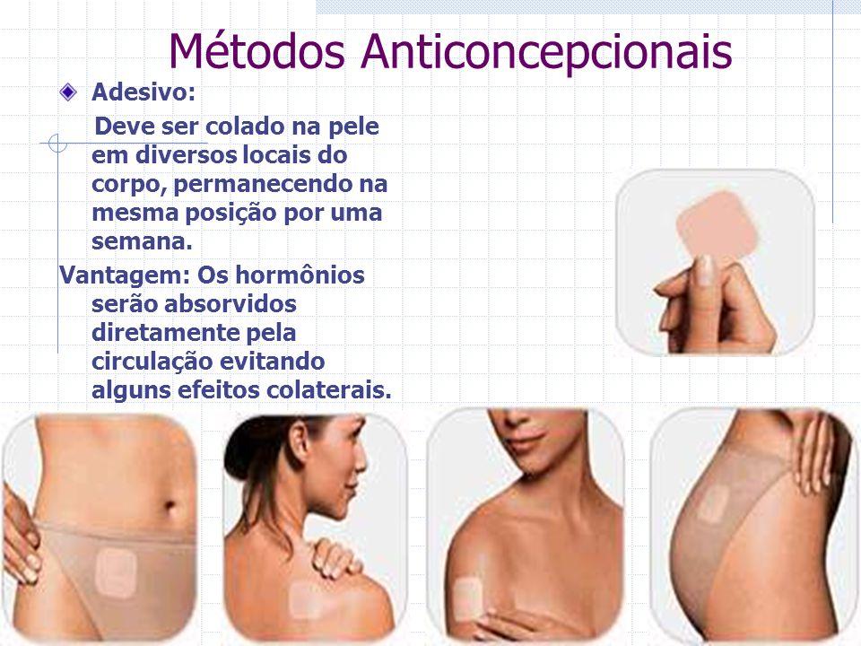 Métodos Anticoncepcionais Adesivo: Deve ser colado na pele em diversos locais do corpo, permanecendo na mesma posição por uma semana. Vantagem: Os hor
