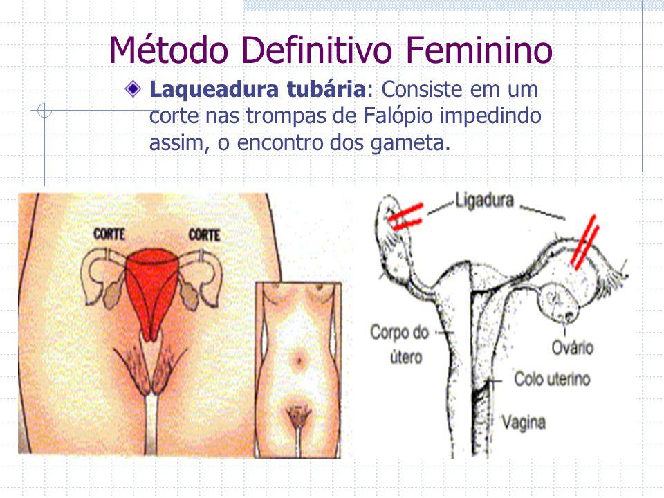 Método Definitivo Feminino Laqueadura tubária: Consiste em um corte nas trompas de Falópio impedindo assim, o encontro dos gameta.