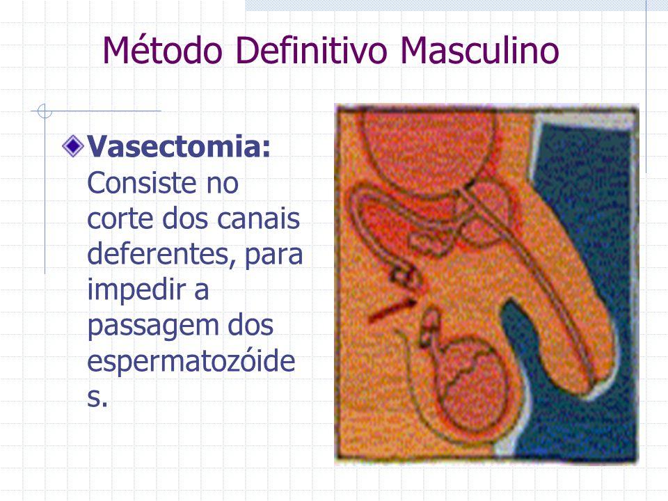 Método Definitivo Masculino Vasectomia: Consiste no corte dos canais deferentes, para impedir a passagem dos espermatozóide s.