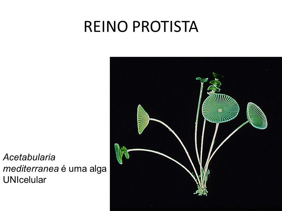 REINO PROTISTA Acetabularia mediterranea é uma alga UNIcelular