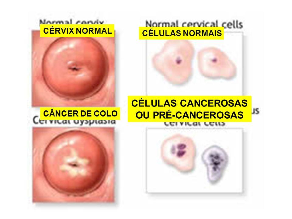 CÉRVIX NORMAL CÂNCER DE COLO CÉLULAS NORMAIS CÉLULAS CANCEROSAS OU PRÉ-CANCEROSAS