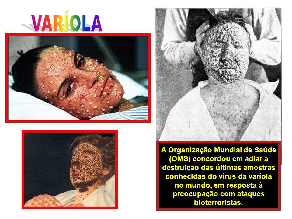 A varíola é uma doença infecto-contagiosa, exclusiva do homem (não sendo transmitida por outros animais, como a dengue, por exemplo), de surgimento e desenvolvimento repentinos e causada pelo Orthopoxvírus variolae, um dos maiores vírus conhecidos e que é muito resistente aos agentes físicos externos, como, por exemplo, variações de umidade e temperatura.