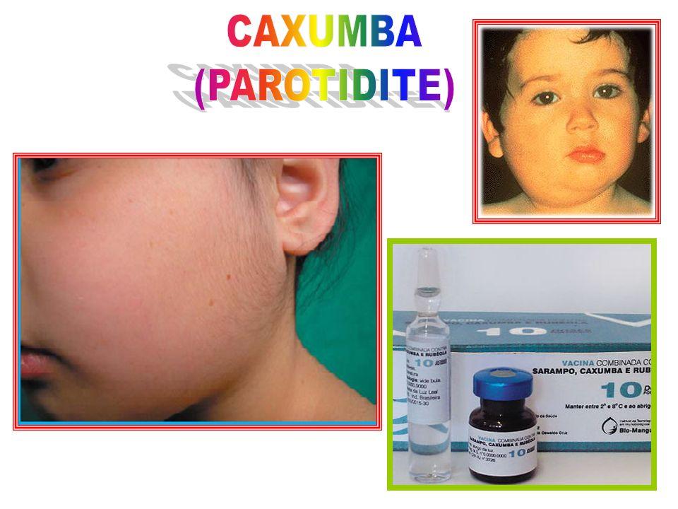 A caxumba é uma doença altamente contagiosa, de transmissão respiratória, causada pelo vírus da caxumba.
