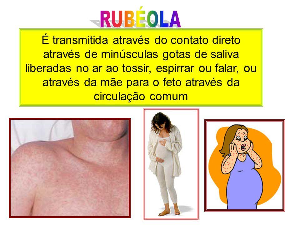 Os maiores agravos determinados pelo vírus da rubéola estão associados a ocorrência da infecção durante a gestação.