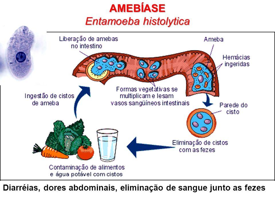Diarréias, dores abdominais, eliminação de sangue junto as fezes AMEBÍASE Entamoeba histolytica