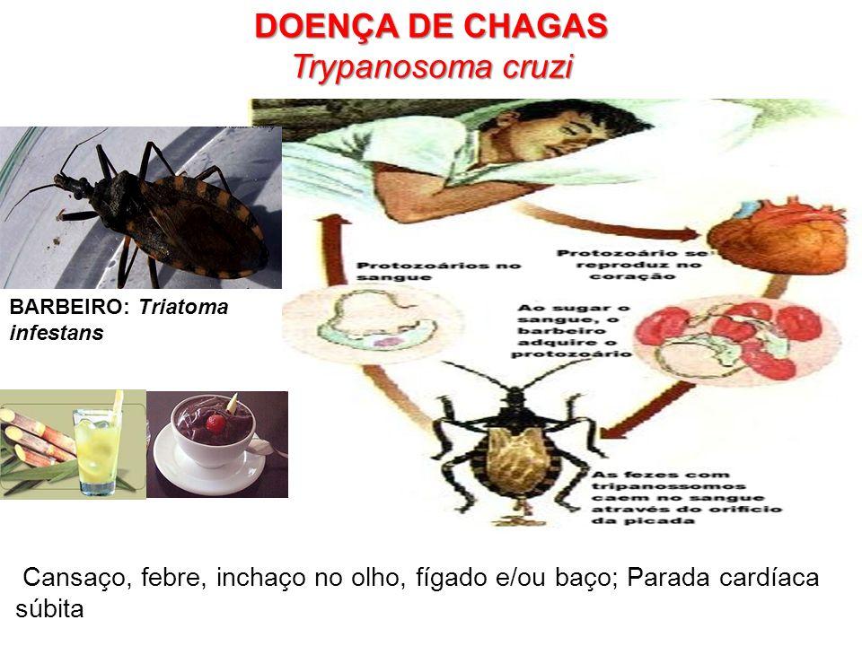 DOENÇA DE CHAGAS Trypanosoma cruzi Cansaço, febre, inchaço no olho, fígado e/ou baço; Parada cardíaca súbita BARBEIRO: Triatoma infestans