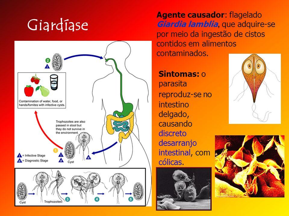 Giardíase Agente causador: flagelado Giardia lamblia, que adquire-se por meio da ingestão de cistos contidos em alimentos contaminados. Sintomas: o pa