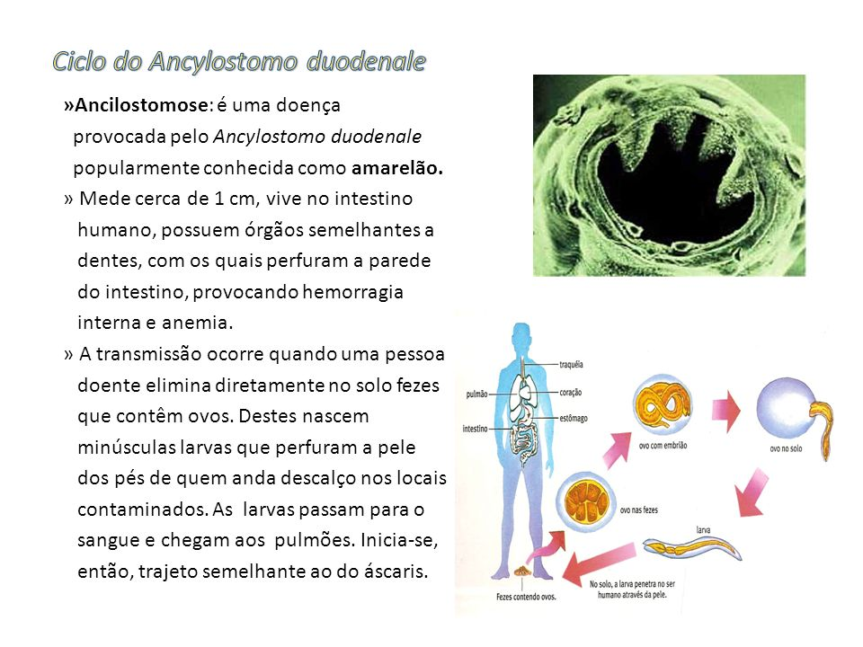 »Ancilostomose: é uma doença provocada pelo Ancylostomo duodenale popularmente conhecida como amarelão. » Mede cerca de 1 cm, vive no intestino humano