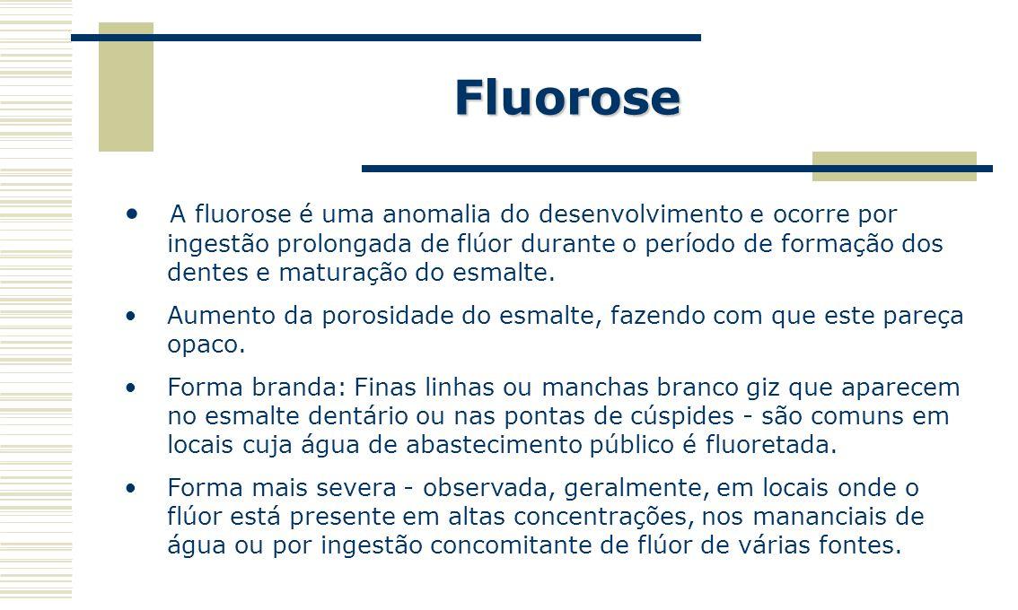 Fluorose Principais Fatores de Risco Presença de flúor em teores acima do recomendado nas águas de abastecimento público, originado do processo de fluoretação ou naturalmente existente nos mananciais; Uso concomitante de duas ou mais formas de ingestão de flúor (sistêmico).