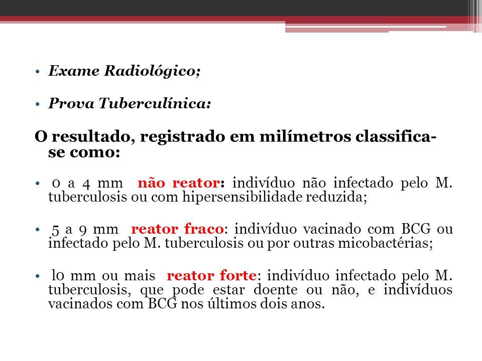 Exame Radiológico; Prova Tuberculínica: O resultado, registrado em milímetros classifica- se como: 0 a 4 mm não reator: indivíduo não infectado pelo M