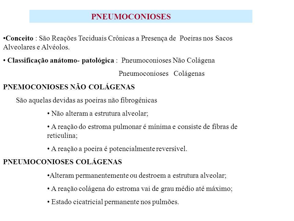 SILICOSE CONCEITO: É A PRINCIPAL PNEUMOCONIOSE NO BRASIL, CAUSADA POR INALAÇÃO DE POEIRA DE SÍLICA LIVRE CRISTALINA ( QUARTZO ).
