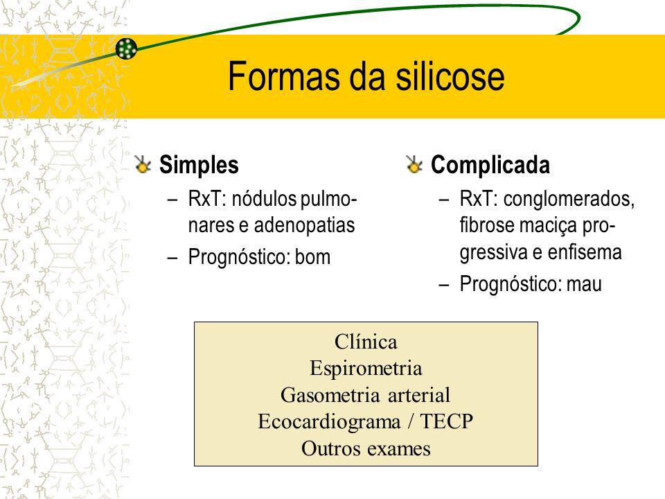 Formas da silicose Simples –RxT: nódulos pulmo- nares e adenopatias –Prognóstico: bom Complicada –RxT: conglomerados, fibrose maciça pro- gressiva e e