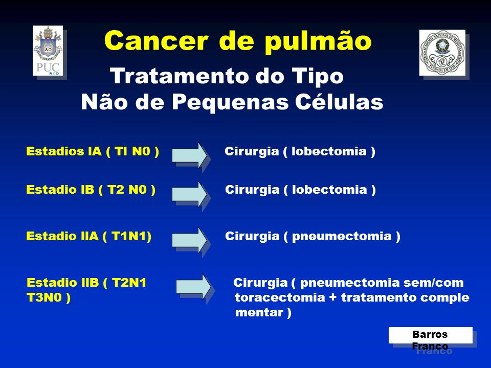 Cancer de pulmão Barros Franco Tratamento do Tipo Não de Pequenas Células Estadios lA ( Tl N0 ) Cirurgia ( lobectomia ) Estadio lB ( T2 N0 ) Cirurgia ( lobectomia ) Estadio llB ( T2N1 Cirurgia ( pneumectomia sem/com T3N0 ) toracectomia + tratamento comple mentar ) Estadio llA ( T1N1) Cirurgia ( pneumectomia )