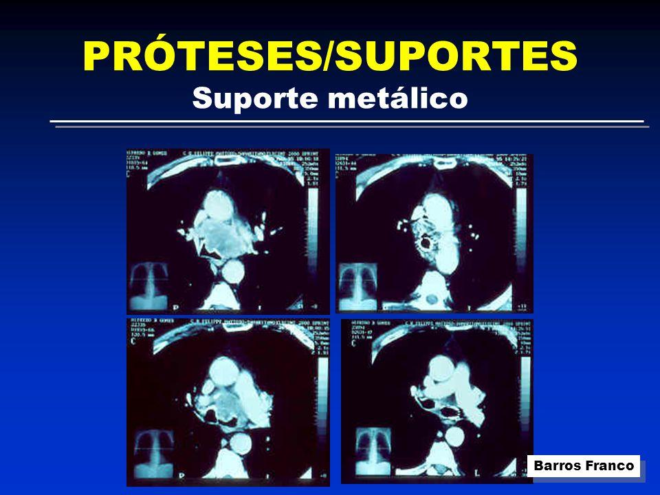 PRÓTESES/SUPORTES Suporte metálico Barros Franco