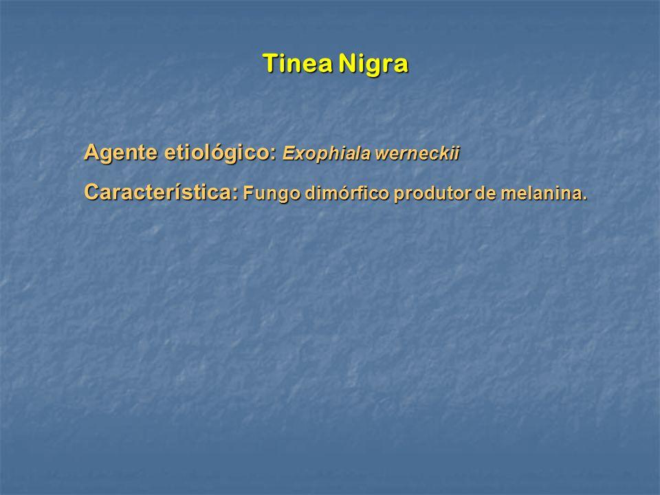 Tinea Nigra Agente etiológico: Exophiala werneckii Característica: Fungo dimórfico produtor de melanina.