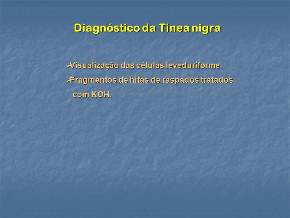 Diagnóstico da Tinea nigra Visualização das células leveduriforme. Visualização das células leveduriforme. Fragmentos de hifas de raspados tratados Fr