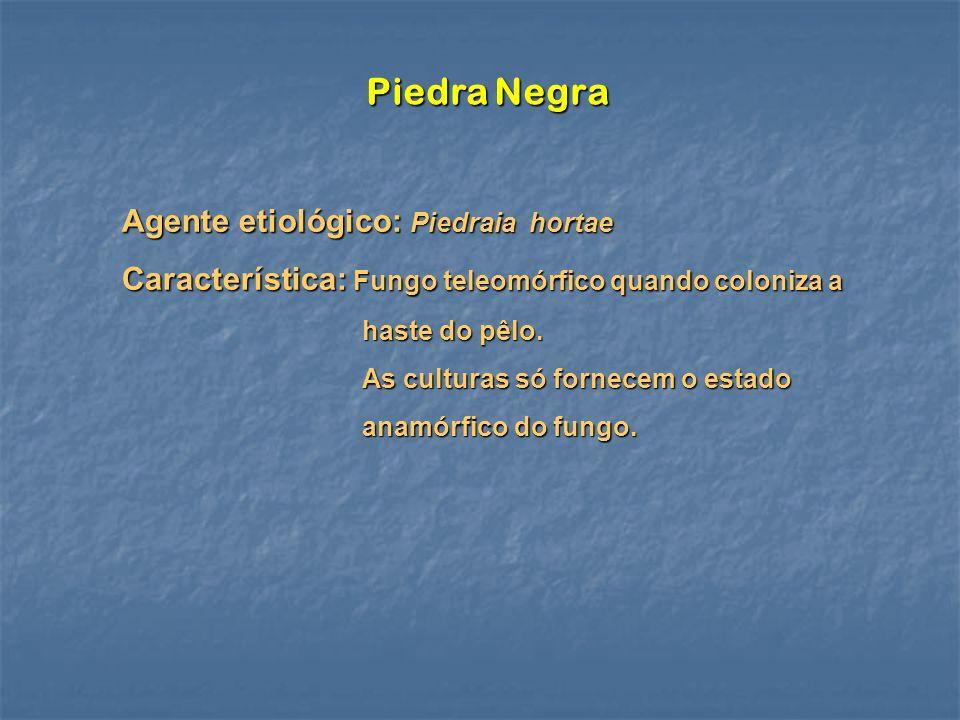 Piedra Negra Agente etiológico: Piedraia hortae Característica: Fungo teleomórfico quando coloniza a haste do pêlo. As culturas só fornecem o estado a