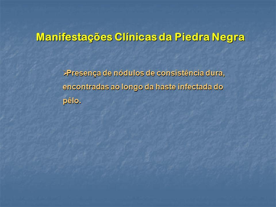 Manifestações Clínicas da Piedra Negra Presença de nódulos de consistência dura, encontradas ao longo da haste infectada do pêlo. Presença de nódulos