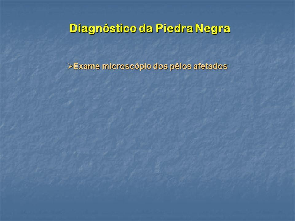 Diagnóstico da Piedra Negra Exame microscópio dos pêlos afetados Exame microscópio dos pêlos afetados