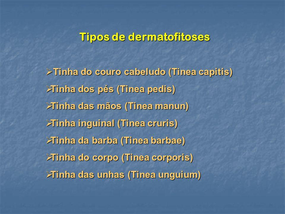 Tipos de dermatofitoses Tinha do couro cabeludo (Tinea capitis) Tinha do couro cabeludo (Tinea capitis) Tinha dos pés (Tinea pedis) Tinha dos pés (Tin