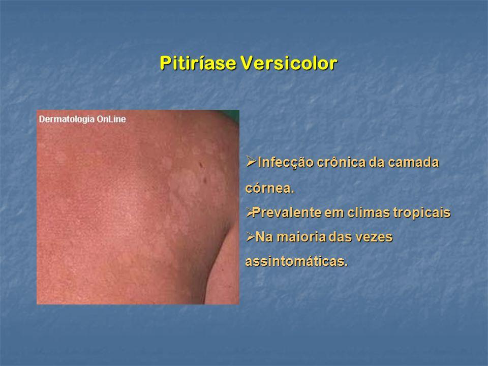 Pitiríase Versicolor Infecção crônica da camada córnea. Infecção crônica da camada córnea. Prevalente em climas tropicais Prevalente em climas tropica