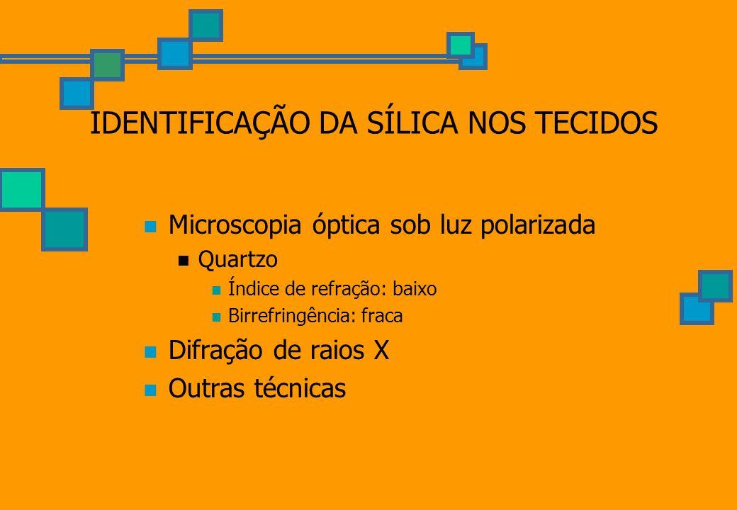 IDENTIFICAÇÃO DA SÍLICA NOS TECIDOS Microscopia óptica sob luz polarizada Quartzo Índice de refração: baixo Birrefringência: fraca Difração de raios X