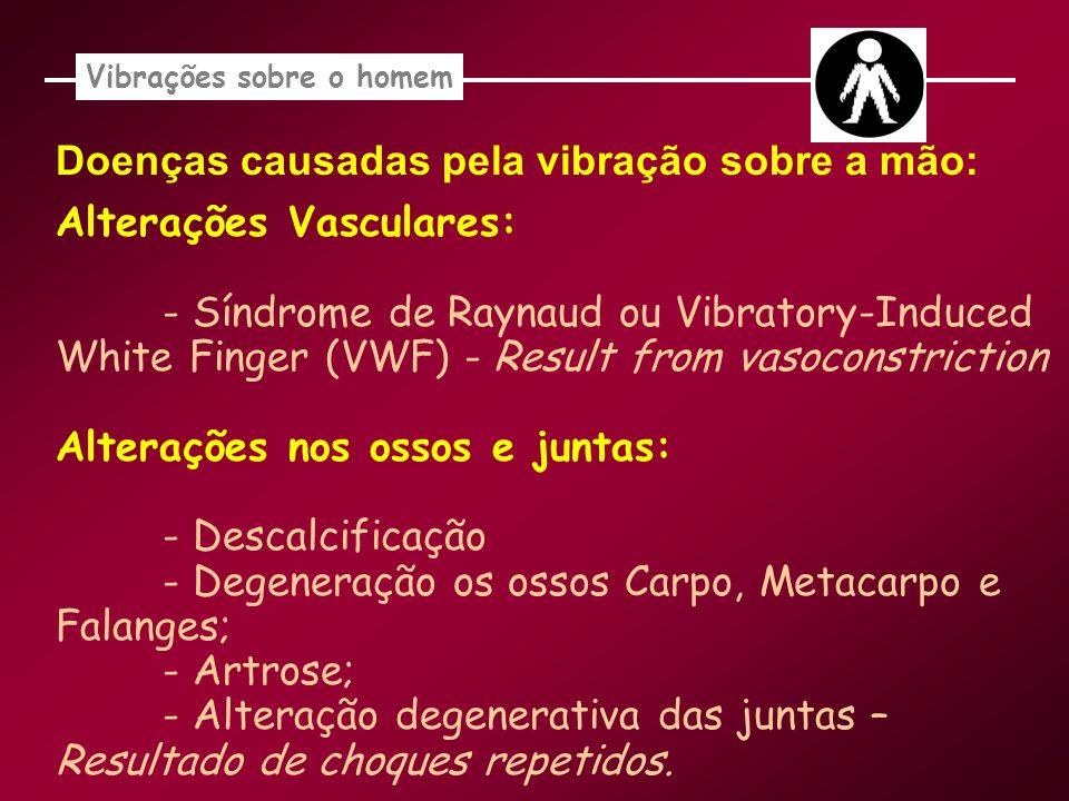 Vibrações sobre o homem Doenças causadas pela vibração sobre a mão: Alterações Vasculares: - Síndrome de Raynaud ou Vibratory-Induced White Finger (VW