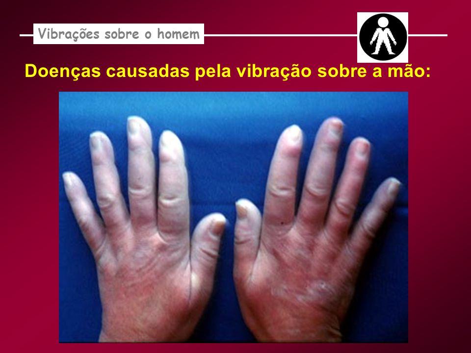 Vibrações sobre o homem Doenças causadas pela vibração sobre a mão:
