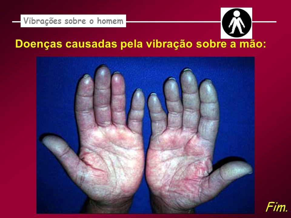 Vibrações sobre o homem Doenças causadas pela vibração sobre a mão: Fim.