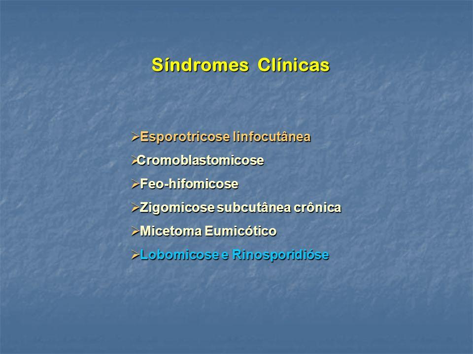 Síndromes Clínicas Esporotricose linfocutânea Esporotricose linfocutânea Cromoblastomicose Cromoblastomicose Feo-hifomicose Feo-hifomicose Zigomicose subcutânea crônica Zigomicose subcutânea crônica Micetoma Eumicótico Micetoma Eumicótico Lobomicose e Rinosporidióse Lobomicose e Rinosporidióse