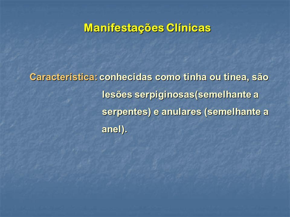 Manifestações Clínicas Característica: conhecidas como tinha ou tinea, são lesões serpiginosas(semelhante a serpentes) e anulares (semelhante a anel).