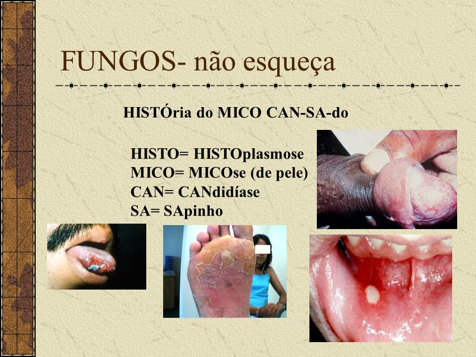 FUNGOS- não esqueça HISTÓria do MICO CAN-SA-do HISTO= HISTOplasmose MICO= MICOse (de pele) CAN= CANdidíase SA= SApinho