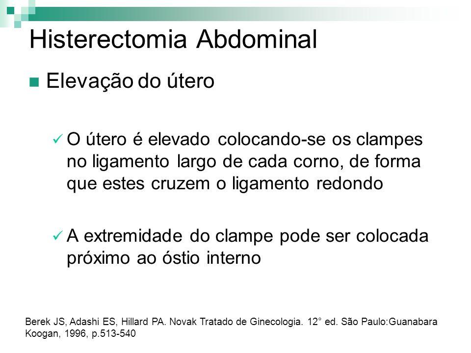 Histerectomia Abdominal Elevação do útero O útero é elevado colocando-se os clampes no ligamento largo de cada corno, de forma que estes cruzem o liga