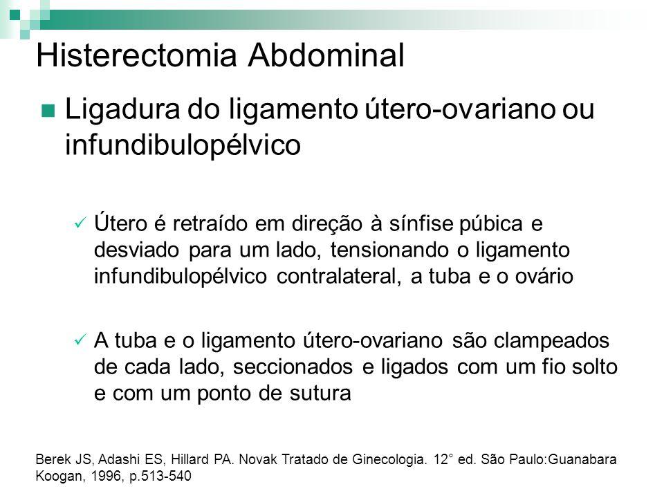 Histerectomia Abdominal Ligadura do ligamento útero-ovariano ou infundibulopélvico Útero é retraído em direção à sínfise púbica e desviado para um lad