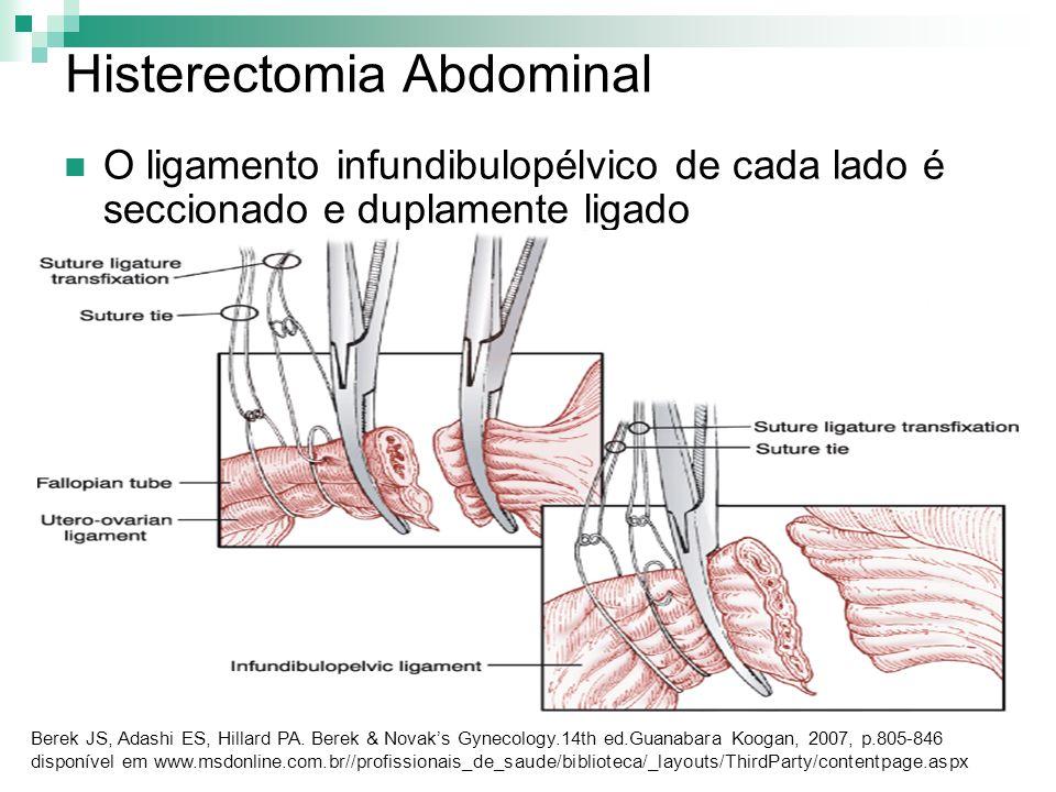Histerectomia Abdominal O ligamento infundibulopélvico de cada lado é seccionado e duplamente ligado Berek JS, Adashi ES, Hillard PA. Berek & Novaks G