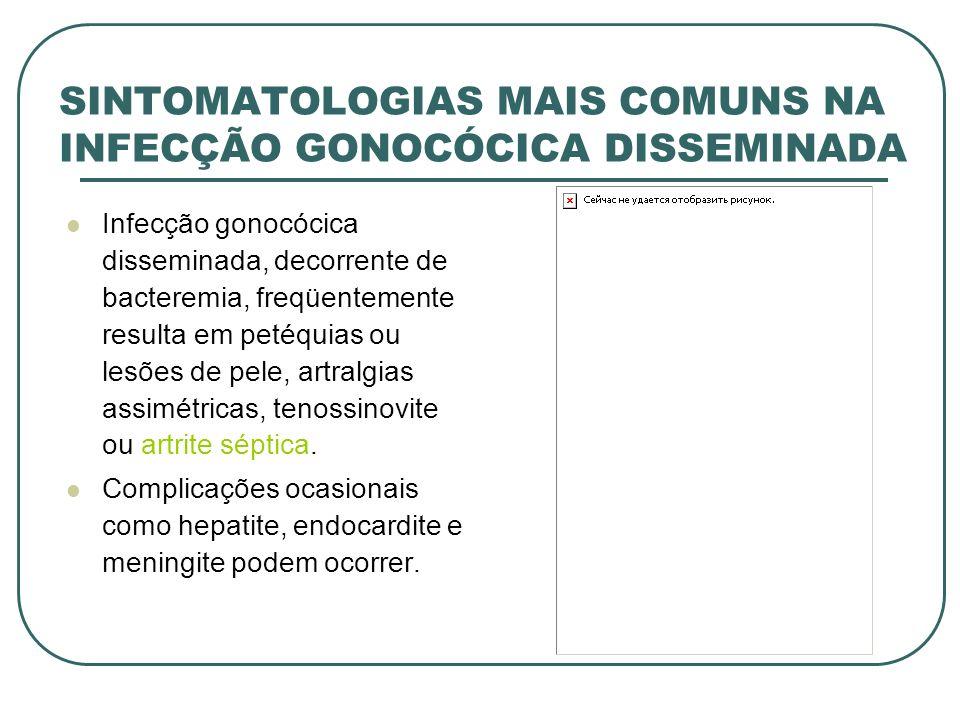 SINTOMATOLOGIAS MAIS COMUNS NA INFECÇÃO GONOCÓCICA DISSEMINADA Infecção gonocócica disseminada, decorrente de bacteremia, freqüentemente resulta em pe
