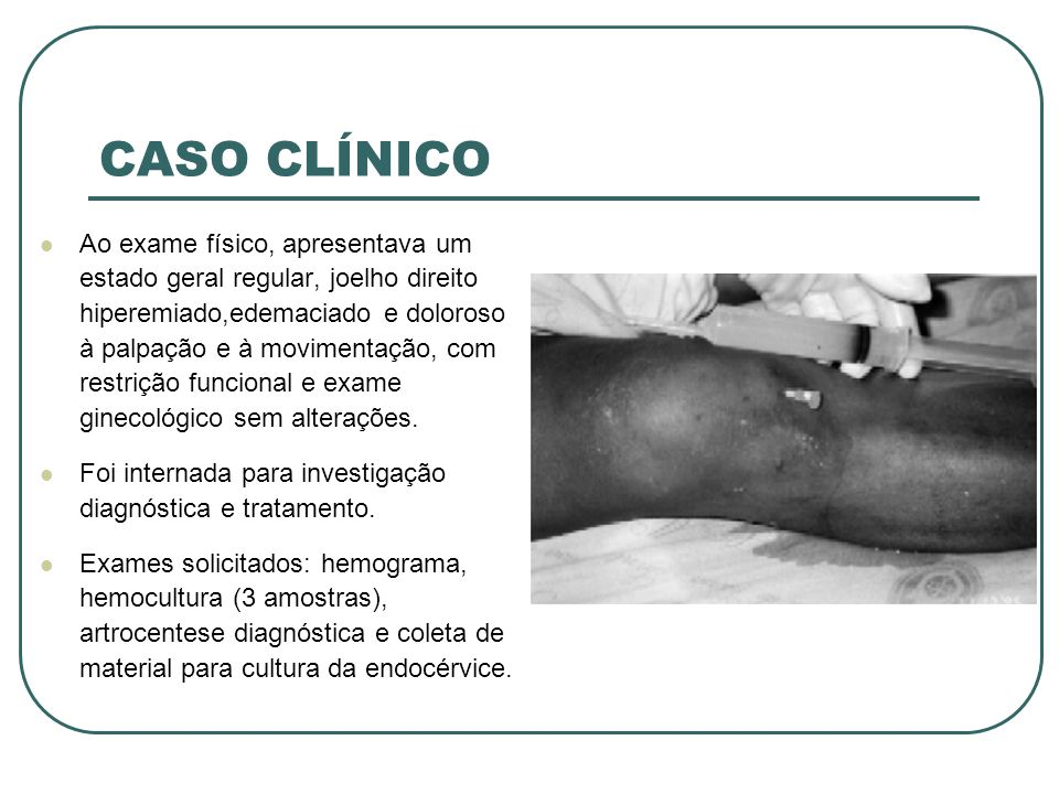 CASO CLÍNICO Ao exame físico, apresentava um estado geral regular, joelho direito hiperemiado,edemaciado e doloroso à palpação e à movimentação, com r