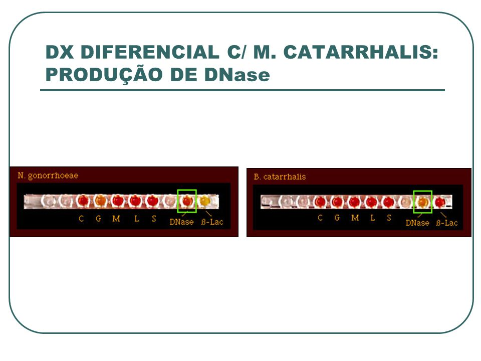 DX DIFERENCIAL C/ M. CATARRHALIS: PRODUÇÃO DE DNase