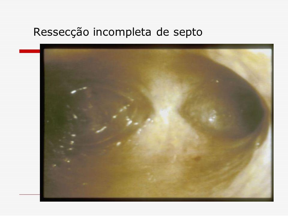 Ressecção incompleta de septo