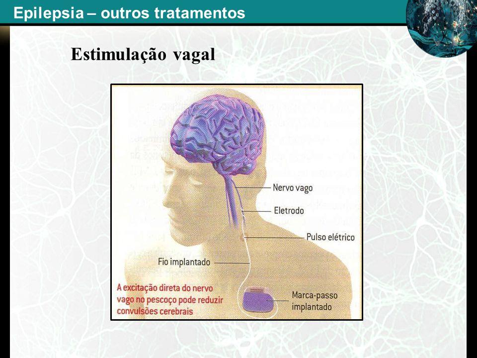 - Estimulação vagal Epilepsia – outros tratamentos
