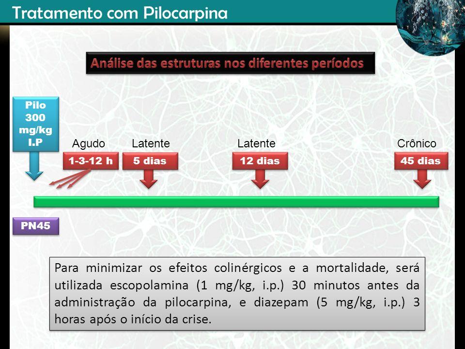 PN45 Pilo 300 mg/kg I.P Pilo 300 mg/kg I.P 45 dias 1-3-12 h 5 dias 12 dias AgudoCrônicoLatente Tratamento com Pilocarpina Para minimizar os efeitos co