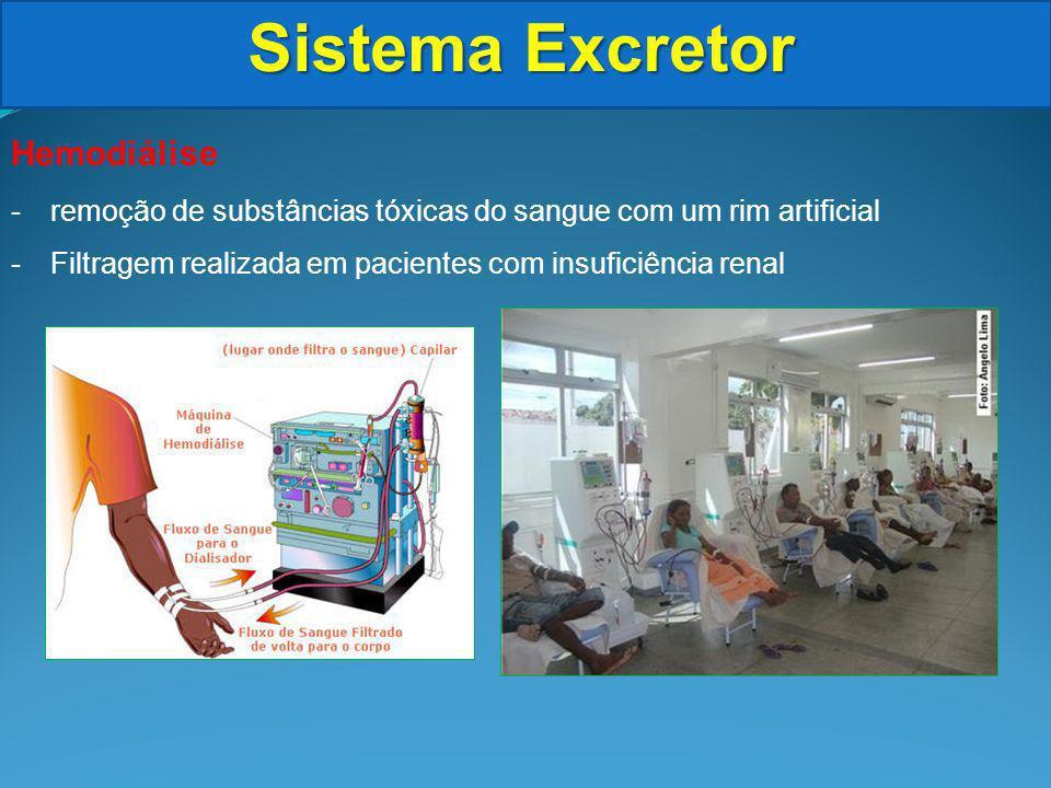 Sistema Excretor Hemodiálise -remoção de substâncias tóxicas do sangue com um rim artificial -Filtragem realizada em pacientes com insuficiência renal