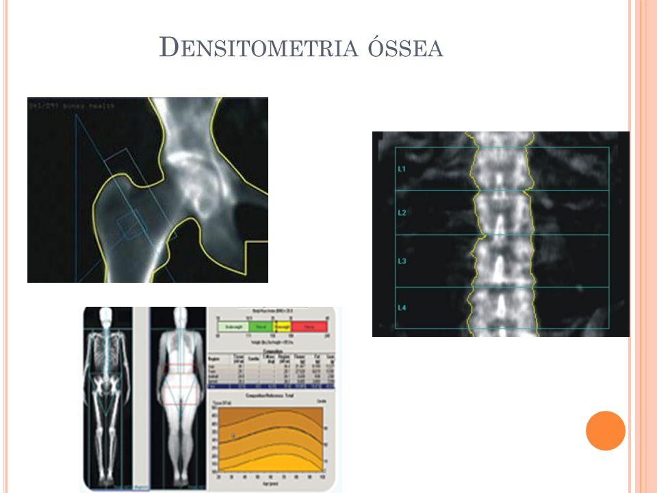 D ENSITOMETRIA ÓSSEA