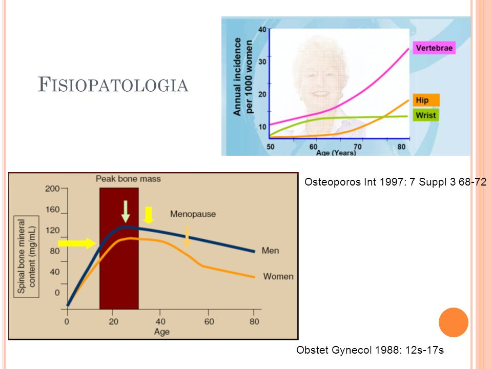 F ISIOPATOLOGIA Obstet Gynecol 1988: 12s-17s Osteoporos Int 1997: 7 Suppl 3 68-72