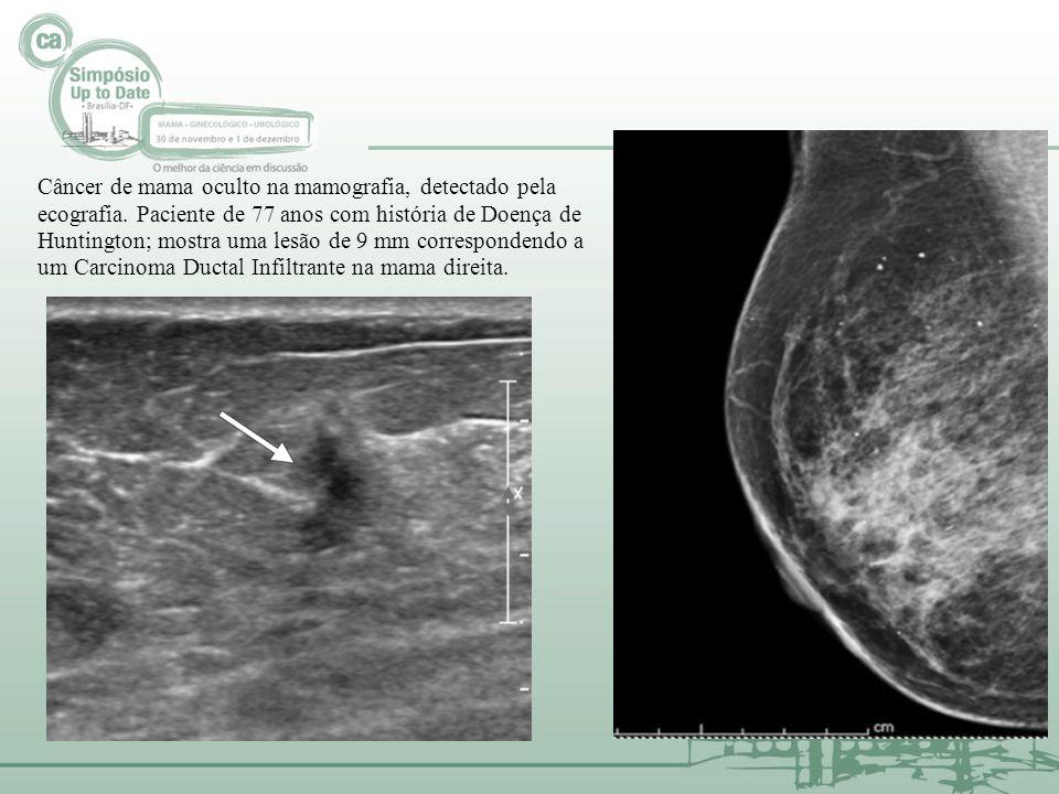 Câncer de mama oculto na mamografia, detectado pela ecografia. Paciente de 77 anos com história de Doença de Huntington; mostra uma lesão de 9 mm corr