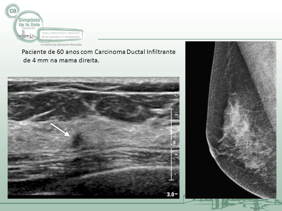 Paciente de 60 anos com Carcinoma Ductal Infiltrante de 4 mm na mama direita.