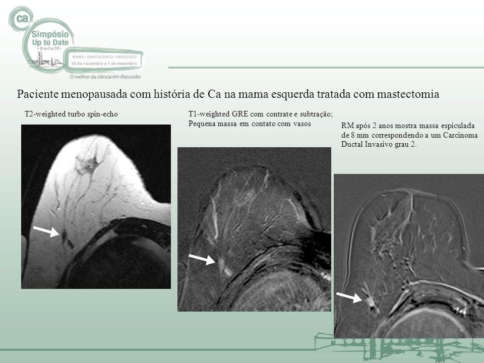 Paciente menopausada com história de Ca na mama esquerda tratada com mastectomia T2-weighted turbo spin-echoT1-weighted GRE com contrate e subtração;