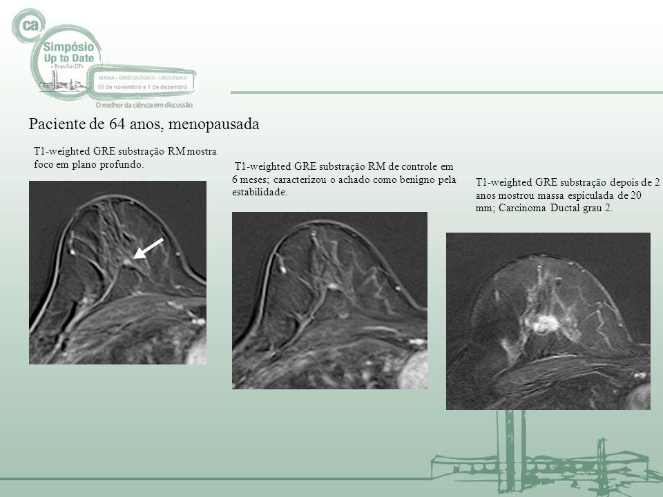 Paciente de 64 anos, menopausada T1-weighted GRE substração RM mostra foco em plano profundo. T1-weighted GRE substração RM de controle em 6 meses; ca